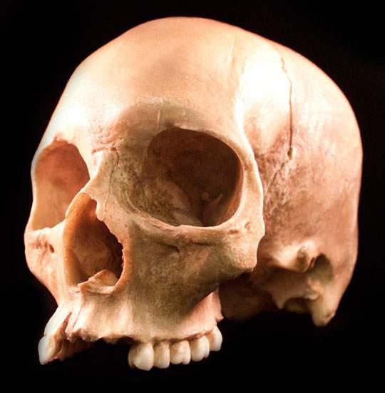 本物の頭蓋骨を撮影したフリー写真素材セット - 02
