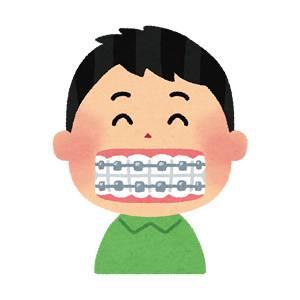 歯の矯正のイラスト