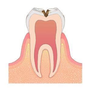 虫歯進行イラスト - 進行 C2